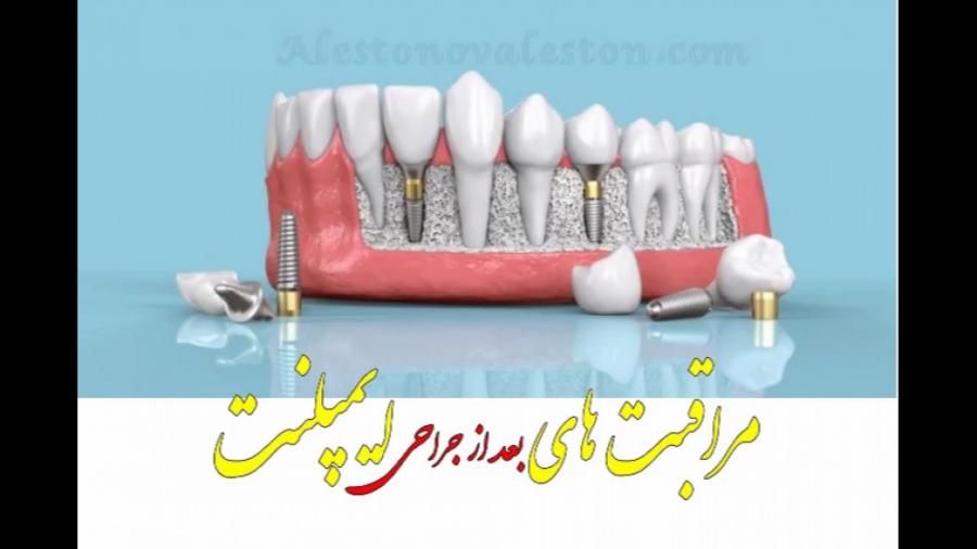 مراقبت های بعد از جراحی ایمپلنت دندان