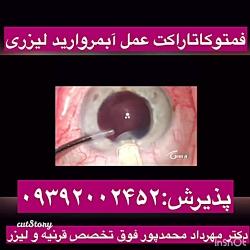 جراحی فمتوکاتاراکت،آبمرواریدلیزری توسط دکترمهردادمحمدپورفوق تخصص لیزیک وقوزقرنیه