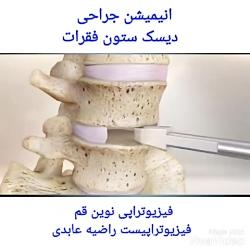جراحی دیسک ستون فقرات فیزیوتراپی نوین قم