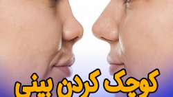 کوچک کردن بینی بدون عمل...