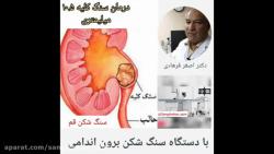 درمان سنگ کلیه ۱۰.۵ میلیمتری با دستگاه سنگ شکن برون اندامی در قم