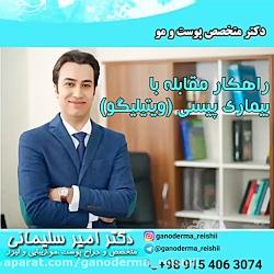 متخصص پوست و مو چگونگی درمان بیماری ویتیلیگو(پیسی)