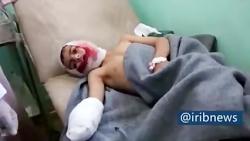 افزایش قربانیان غیرنظامی انفجار مین در یمن