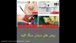 روش های درمان سنگ کلیه