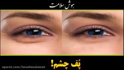 کاهش پف چشم به روش کاملا ساده- بخش اول