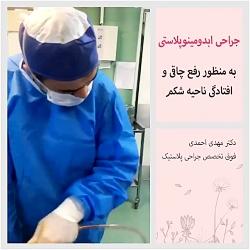 جراحی ابدومینوپلاستی (جراحی لاغری شکم)