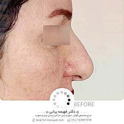 عمل جراحی بینی (رینوپلاستی)   دکتر فهیمه بیاتی