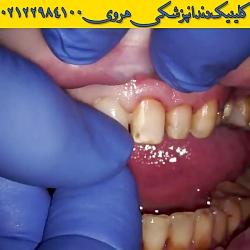 لمینت دندان | ونیر دندان | زیبایی دندان