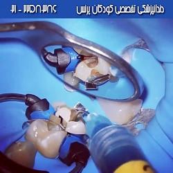 دندانپزشکی ترمیمی برای دندان های آسیاب