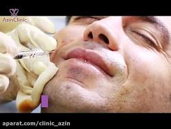 تزریق ژل برای پر کردن خط خنده