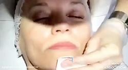 الو دکتر- لیزر و جوانسازی پوست