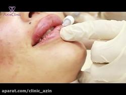 تزریق ژل لب تضمینی در کلینیک آذین