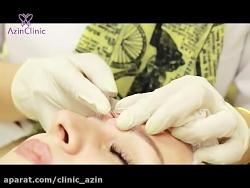 درمان فرورفتگی های پوست با سابسیژن در کلینیک آذین