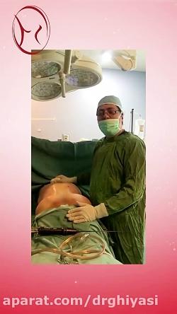پیکر تراشی و تزریق چربی در باسن