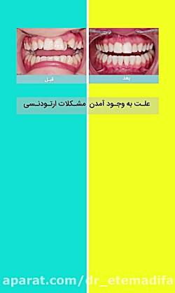 چرا دچار مشکلات ارتودنسی می شویم؟ علت بوجودآمدن ناهنجاریهای دندان