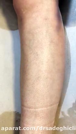 لیزر موهای زائد - دستگاه الکساندرایت