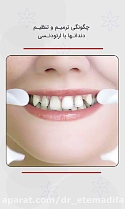 نحوه ترمیم، هماهنگی و تنظیم دندانها با ارتودنسی