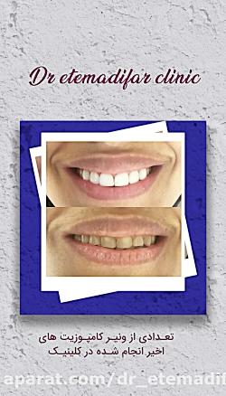 اصلاح خط لبخند از طریق ونیر کامپوزیت در کلینیک دکتر روح الله اعتمادی فر