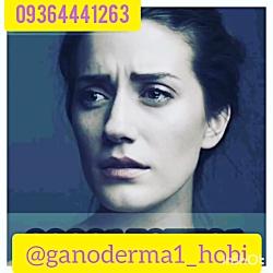 درمان زگیل تناسلی 09364441263 درمانی مطمئن و موثر با ما تماس بگیرید 09364441263