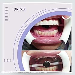 کاشت ایمپلنت دندان با تکنیک اوردنچر در کلینیک دکتر اعتمادی فر