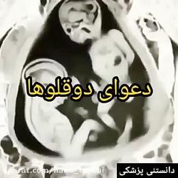 دعوای جنین در شکم مادر