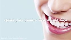 چگونه می توان دندان های سفید تری داشته باشیم؟ 10ترفند