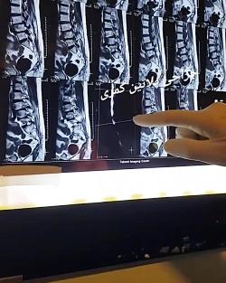 جراحی تنگی کانال نخاع با پلاتین گذاری و توضیحات دکتر عصایی