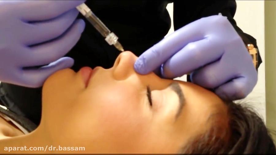 تصویر از ترمیم بینی بدون جراحی ( تزریق فیلر  یا ژل به بینی )