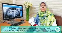 نگرانی درباره اشعهx و رادیوگرافی دندان