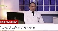 بیماری لوپوس چیست ؟ و درمان آن چیست؟