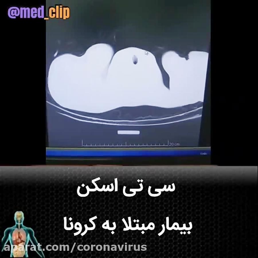 تصویر از سی تی اسکن بیمار مبتلا به کرونا