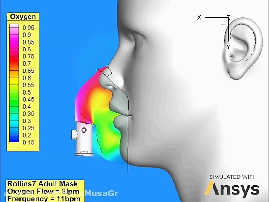 کرونا ویروس؛ طراحی و ساخت دستگاه ونتیلاتور یا تنفس مصنوعی