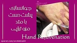 جوانسازی دست