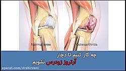 git v. q tratamentul artrozei tratamentul articulațiilor sandale