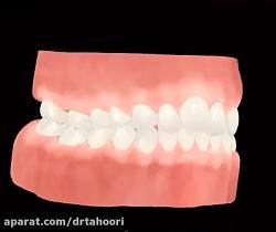 دندانپزشکی فوق تخصص ایمپلنت و زیبایی پردیس