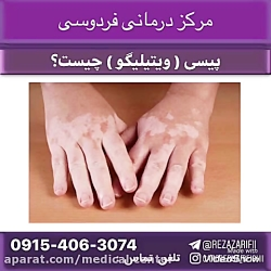 درمان قطعی بیماری پوستی پیسی یا ویتیلیگو ///کادر درمانی فردوسی