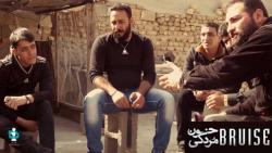 مستند خون مردگی : محمد ک...