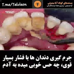 جرم گیری دندان ها با فشار بسیار قوی!!