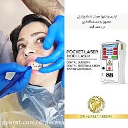 دکتر علیرضا عابدینی | دندانپزشک زیبایی نجف آباد | لیفت لثه با لیزر