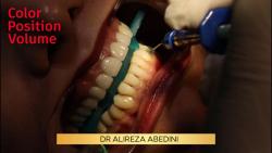 دکتر علیرضا عابدینی | دندانپزشک زیبایی اصفهان | بلیچینگ یا سفیدکردن دندان