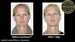 وبینارچگونگیمراقبتومحافظت از پوستصورتوبدن(محصولاتژنس)وپاسخبهسوالات