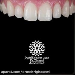 اصلاح طرح لبخند با کامپوزیت | کلینیک دندانپزشکی دکتر مهری قاسمی