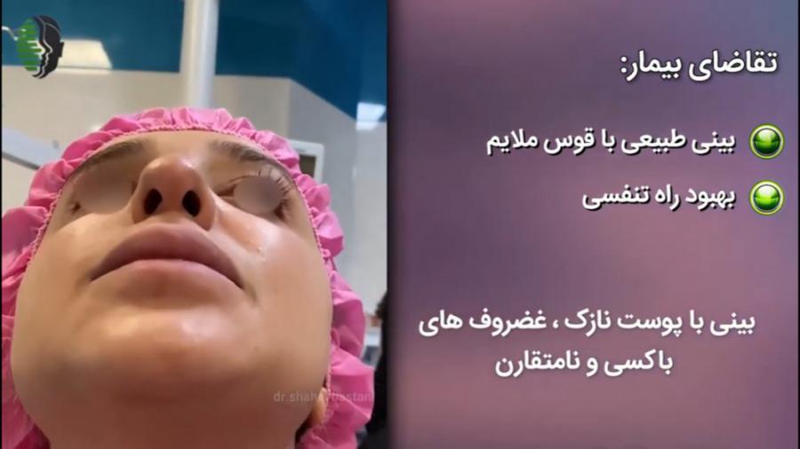 جراحی بینی طبیعی در بیمار با پوست بینی نازک | کتر باستانی نژاد
