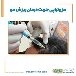 مزوتراپی جهت درمان ریزش مو