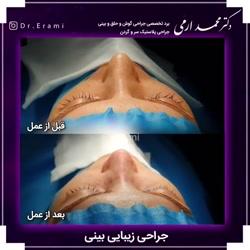 دکتر محمد ارمی