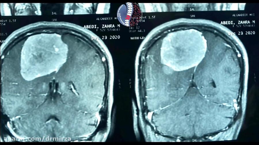 تصویر از جراحی تومور بزرگ مغزی