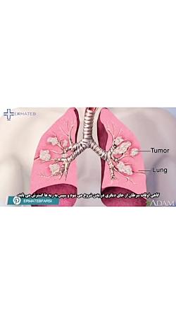 آشنایی با سرطان ریه