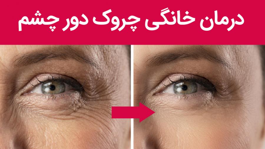درمان خانگی چروک دور چشم | ترفندهای آرایشی
