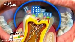 عوامل مؤثر در پوسیدگی دندان