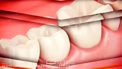 دندان قروچه-بهداشت دندان